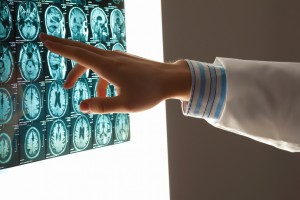 While falling and being involved in motor vehicle accidents most commonly causes traumatic brain injuries, these injuries can be caused by various types of negligence.